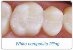 Do you have a cavity that needs to be filled? I came in to see Dr. Greer today at Sweet Water Dentistry in Fairhope, Alabama for a filling. A white filling was done. I am very pleased!