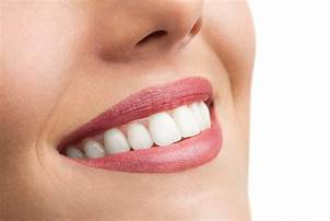 Are you embarrassed by your teeth? I came to Sweet Water Dentistry and Dr. Greer delivered white implants. I love my beautiful smile!