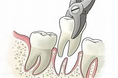 Daphne, AL - Are you nervous about having a tooth extracted? I was nervous for my extraction, but Dr. Greer and his staff at Sweet Water Dentistry in Fairhope, Alabama put my nerves at ease. The procedure went very smoothly!