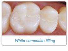Daphne, AL - Are you needing to have a cavity filled but don't want it to be noticeable? I went in for an appointment today at Sweet Water Dentistry in Fairhope, Alabama. Dr. Greer gave me a white filling and you cannot even tell I had one done! Very pleased with these results!