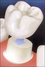 Columbia, LA - Do you need a dental crown? I had been needing one for a while. I went in to Sweet Water Dentistry today in Fairhope, Alabama. Dr. Greer and his staff to care of me and gave me a white crown.