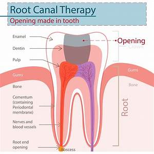 Cantonment, FL - I was having a tooth that was causing me discomfort. I was nervous to have it looked at. I went in to see Dr. Greer today at Sweet Water Dentistry and he took great care of me. He performed a root canal on the painful tooth. I am so thankful to finally be out of pain!