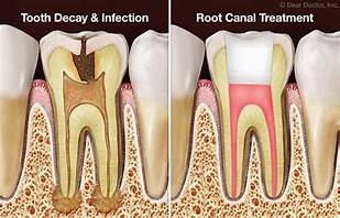 Cantonment, FL - Are you experiencing pain in a tooth? I needed a root canal and had been putting it off. I made an appointment at Sweet Water Dentistry in Fairhope, Alabama. I am happy to say now that my tooth pain is gone! Thank you Dr. Greer and staff!!!