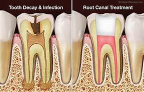 Are you nervous to have a root canal? I went in to Sweet Water Dentistry today, located in Fairhope, Alabama. Dr. Greer and his staff made this procedure easy! My root canal has been complete!