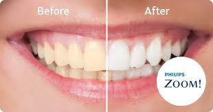 Are you looking for a whiter smile? I wanted whiter teeth and heard that Sweet Water Dentistry in Fairhope, Alabama offered the ZOOM whitening. I cannot believe how much whiter my teeth are, I can't stop showing off my bright white smile!