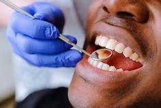 Elberta, AL - Dental xrays, adult teeth cleaning, and comprehensive dental exam given to check for dental needs.