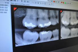 Magnolia Springs, AL - ADULT TEETH CLEANING  UPDATE XRAYS FULL DENTAL EXAM DISCUSSED WHITENING AND INVISALIGN