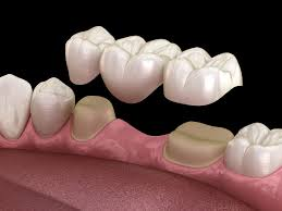 Satsuma, AL - Extractions, white dental bridge