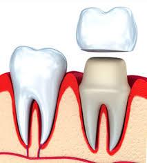 Orange Beach, AL - white dental crown