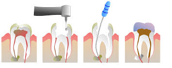 Mobile, AL - Dental Root Canal. No pain! I was able to get my white crown the same day. I couldn't believe how smooth the process was.