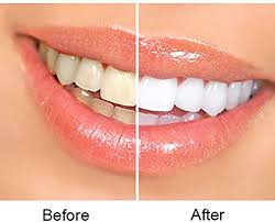 Mobile, AL - ZOOM whitening treatment