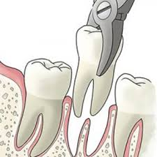 Orange Beach, AL - surgical tooth extraction, local anesthetic, nitrous