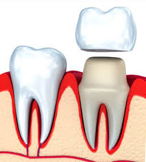Greencastle, IN - White dental crown, endodontic therapy