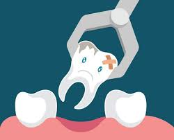 Robertsdale, AL - Tooth extraction, decayed tooth, tooth infection, local anesthetic, nitrous