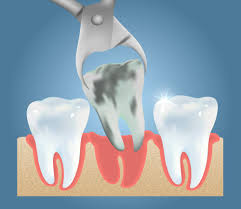 Pensacola, FL - Surgical tooth extraction, local anesthetic, nitrous