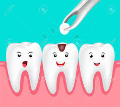 Daphne, AL - Cavity, tooth decay, decay removal, white tooth filling