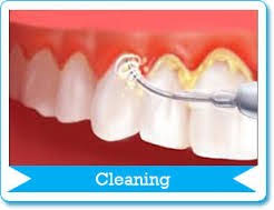Teeth cleaning, dental checkup, oral hygiene