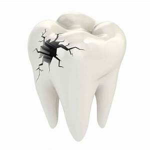 Alpharetta, GA - Tooth decay, caries, cavity, cavity removal, white filling material, cavity free