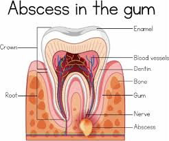 Are you looking for a general dentist who also does root canals? I had a very painful abscess. Today, I had a root canal done at Sweet Water Dentistry in Fairhope, Alabama. The procedure went very smooth and I am so thankful to be out of pain!