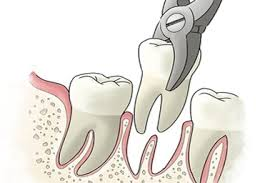 Tooth extraction, local anesthetic