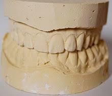Dental impressions, custom-made dentures