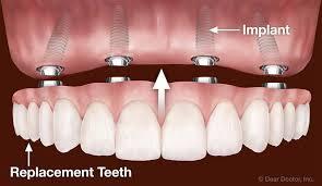 White dental implants, cosmetic dentistry, Sweet Water Dentistry, Fairhope, Alabama.