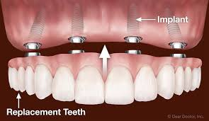Cosmetic Dentistry, white dental implants, smile perfection
