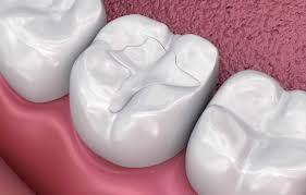 White fillings, decay removal, cavity free