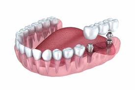 Semmes, AL - ADULT TEETH CLEANING CHILD DENTAL CLEANING DEEP TEETH CLEANING FULL EXAM DIGITAL XRAYS TEETH WHITENING INVISALIGN ROOT CANALS CROWNS AND CAP WHITE FILLINGS LASER THERAPY IMPLANTS VENEERS DENTURES EXTRACTIONS PAIN MANAGEMENT LAUGHING GAS NITROUS SEDATION EXTRACTIONS BOTOX LIP FILLERS  MEDICAID DENTIST