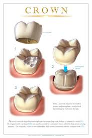 Foley, AL - White dental crown, Endodontics, crown made in office, same day crown delivery