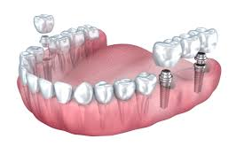 Foley, AL - Cosmetic dentistry, white dental implants, smile perfection