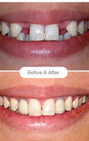 Fairhope, AL - ADULT TEETH CLEANING