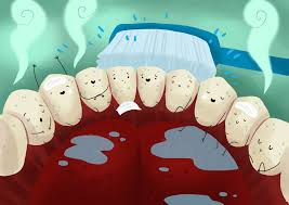 Gulf Shores, AL - ADULT TEETH CLEANING CHILD DENTAL CLEANING DEEP TEETH CLEANING FULL EXAM DIGITAL XRAYS TEETH WHITENING INVISALIGN ROOT CANALS CROWNS AND CAP WHITE FILLINGS LASER THERAPY IMPLANTS VENEERS DENTURES EXTRACTIONS PAIN MANAGEMENT LAUGHING GAS NITROUS SEDATION EXTRACTIONS BOTOX LIP FILLERS  MEDICAID DENTIST