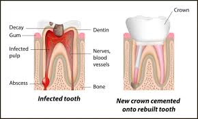 Foley, AL - tooth decay, white dental crown, same day crown delivery, Sweet Water Dentistry, Fairhope, Alabama