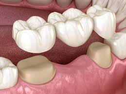 Loxley, AL - White dental bridge, cosmetic dentistry