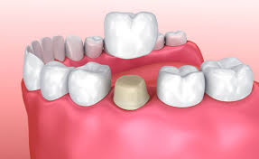 Foley, AL - White dental crown, in office fabrication, same day crown delivery