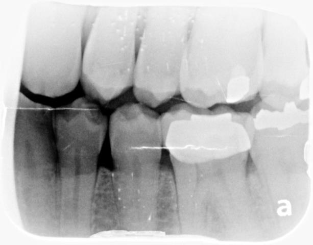 Prichard, AL - Performed a comprehensive evaluation on patient. Took panoramic x-ray. Consulted for maxillary partial denture.