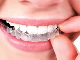 Arlington, WA - Cosmetic Dentistry: Patient has some cosmetic issues she would like to correct, so we took impressions for Invisalign treatment today!