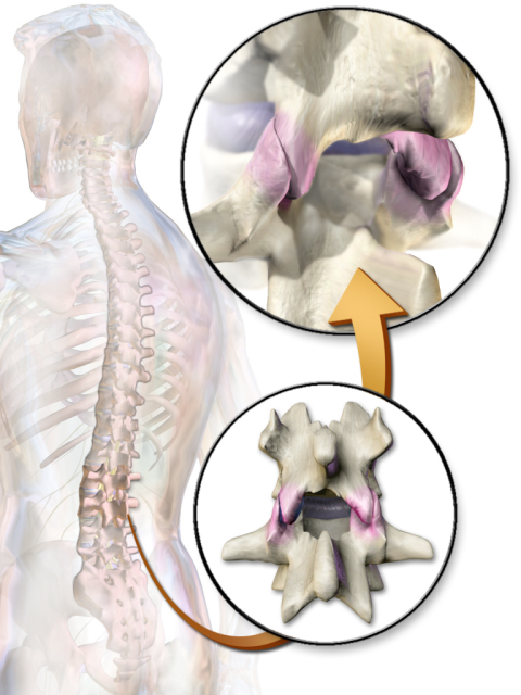 Using chiropractic adjustments, PRRT, and active rehabilitation to help patient in severe pain due to an impinged lumbar facet.  Improved ability to stand and walk in first visit!
