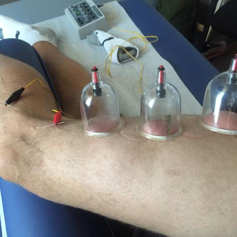 Denver, CO - We use dry needling and cupping to help athletes with  IT Band pain relief.  This is common with runners.