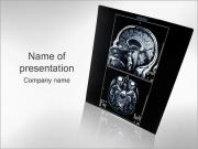 Brain Angiogram PowerPoint Template