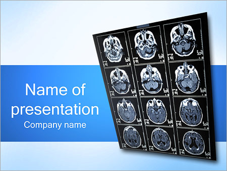 Brain X Ray Powerpoint Template Backgrounds Google Slides Id
