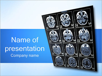 Brain X-ray PowerPoint Template