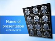 Brain X-ray PowerPoint Templates