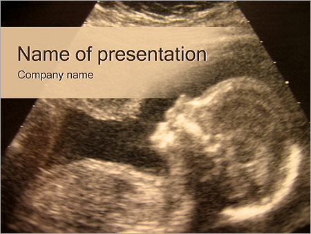 Ultrasonography of fetus powerpoint template backgrounds google ultrasonography of fetus powerpoint template toneelgroepblik Images