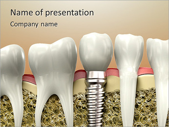 Professional Tooth Implant PowerPoint Template