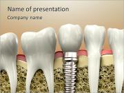 Professional Tooth Implant PowerPoint Templates