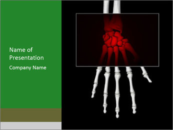X-Ray of Human Wrist PowerPoint Template