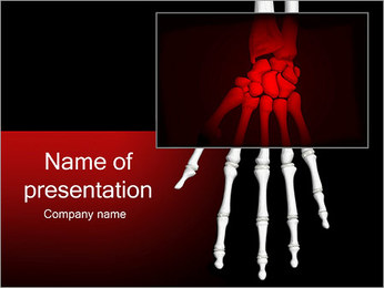 Painful Hand PowerPoint Template