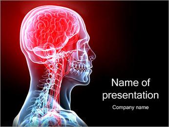 Hoofdpijn Migraine Sjablonen PowerPoint presentatie
